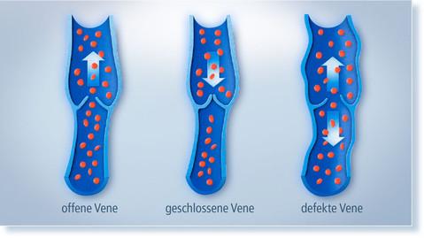 Venen - Praxis für Venenheilkunde